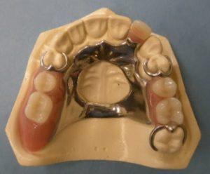 ponte dentaria.