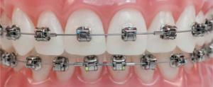 dentes com aparelho