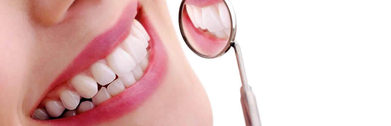 foto de sorriso com espelho de dentista