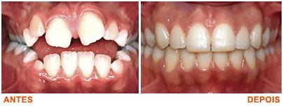 imagens de dentes antes e depois